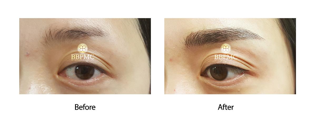 Eyeline & Eyebrow