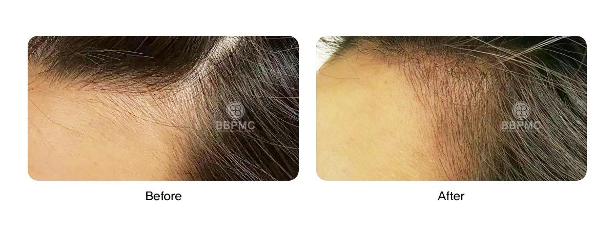 sns-hair101