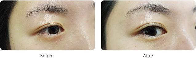 eyeline-before after
