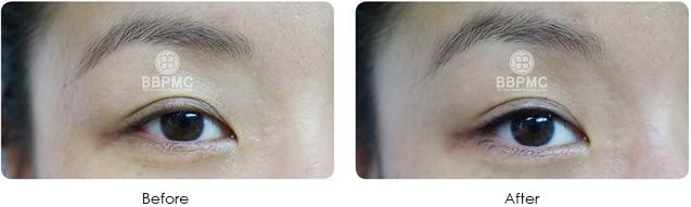 eyeline-before-after-5