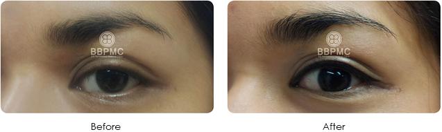 eyeline-before-after4